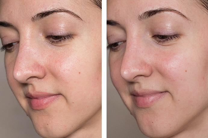 Facials After Before