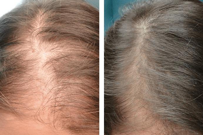 Hair Rejuvenation After Before
