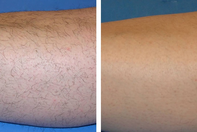 Laser Hair Removal After Before