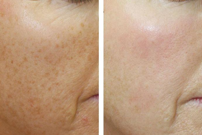 Skin Pigmentation After Before