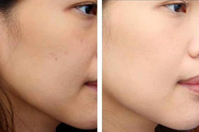 Skin Whitening After Before