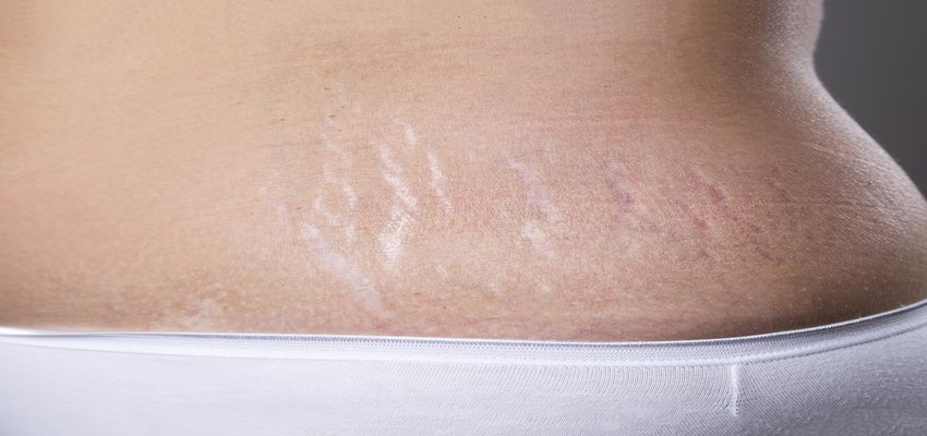 London Aesthetics: Cutting Edge Stretch Marks Treatment