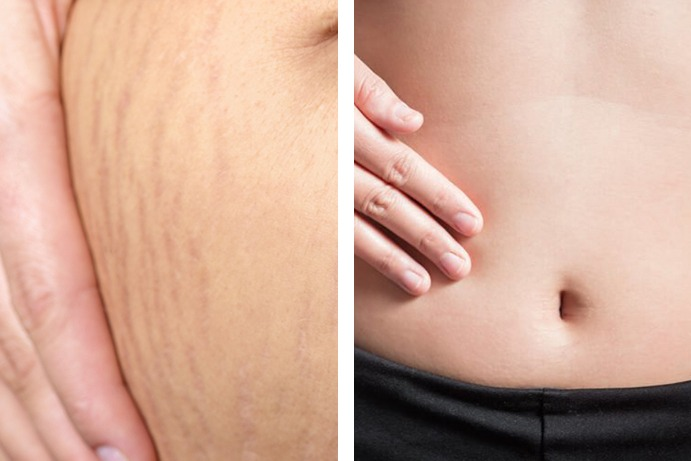 Stretch Marks After Before