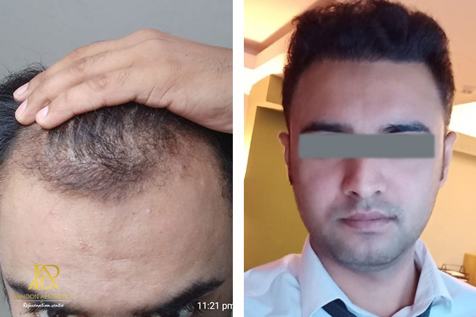 Hair Transplant-After-Before