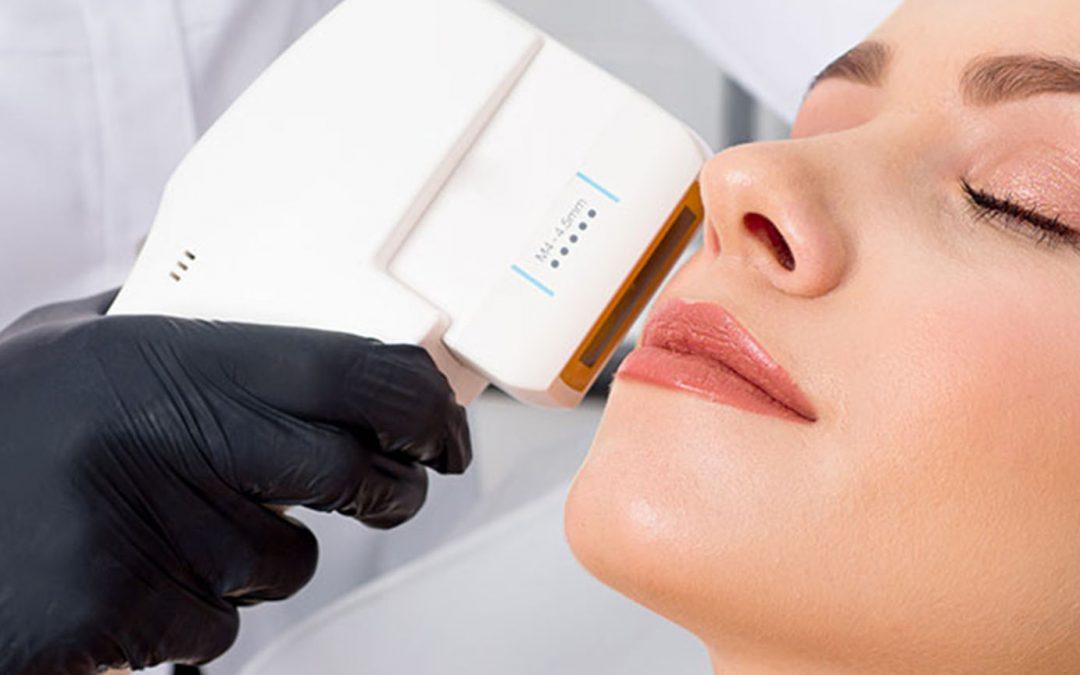 HIFU – Future of Skin Lifting