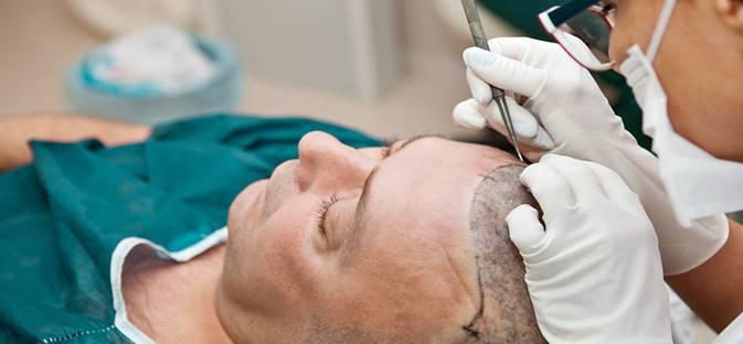 Hair Transplant: Types, Treatment, Procedure,