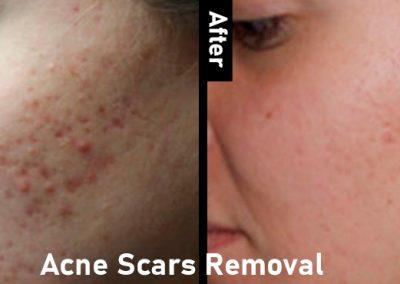 Acne Scars-