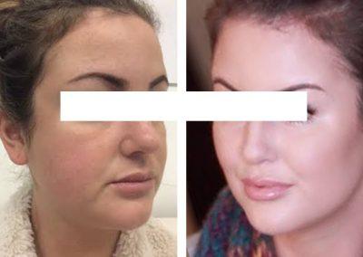 Botox & Fillers Treatment