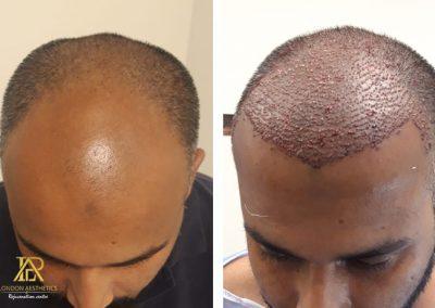 Hair Transplant-