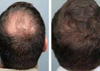 Regenera Stem Cell Hair Treatment