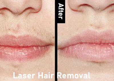 laser-back-hair-removal