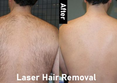 laser-back-hair-removal-before-and-after-large