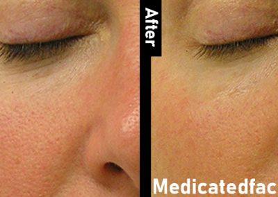 medicated Facial-