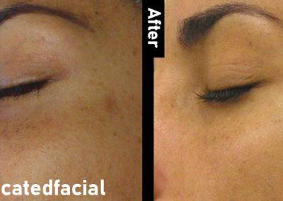 medicated Facial