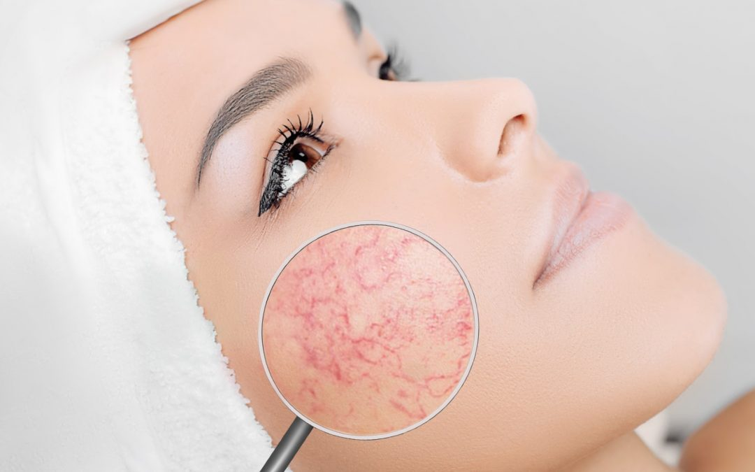 ACNE & ROSACEA – WHAT'S THE LINK? – LARC